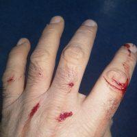 povrede2